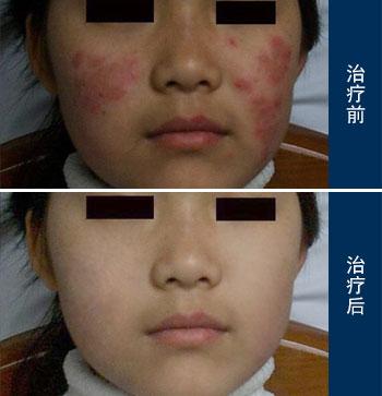 红斑狼疮的形成原因有哪些?