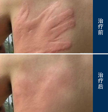 丘疹性荨麻疹的早期症状