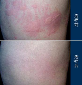 慢性 蕁 麻疹 治療