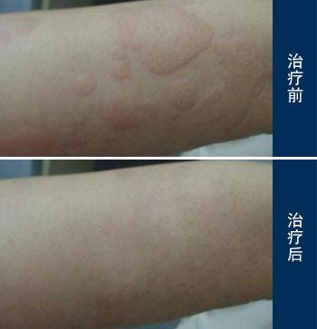 不同荨麻疹的症状