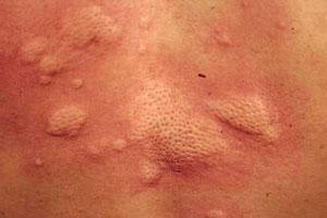儿童患上风疹有哪些症状危害大吗?