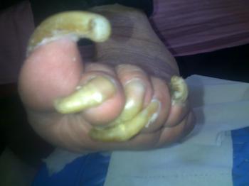 营养不良易致灰指甲