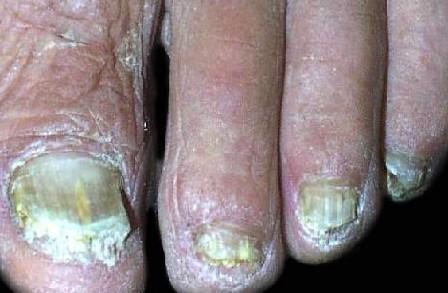 夏季灰指甲的预防