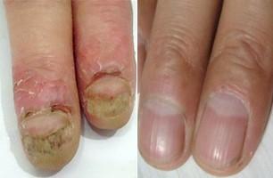 引发灰指甲的病因有哪些