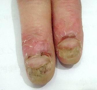 灰指甲患者的表现症状有哪些