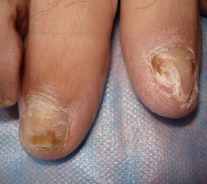 灰指甲的危害到来的征兆