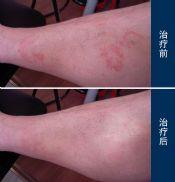 青年人脂溢性皮炎的症状是什么