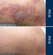 哪些诊断方法可以轻易辨明湿疹