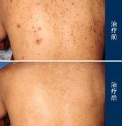 感染脂溢性皮炎的原因