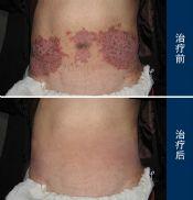 用哪些方法能够治疗湿疹