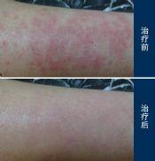 过敏性皮炎有哪些症状