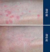 胆碱能性荨麻疹是什么呢?
