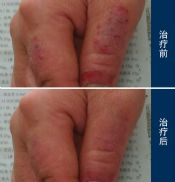 不同部位的湿疹有哪些不同的症状