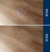 导致过敏性皮炎湿疹的病因