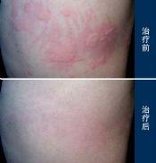 荨麻疹的症状鉴别如何做?