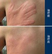 人工性荨麻疹有哪些症状表现?