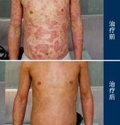 大疱性先天性鱼鳞病样红皮病的症状