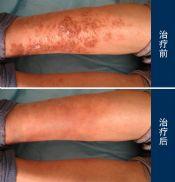 西医治疗湿疹可以用到哪些方法
