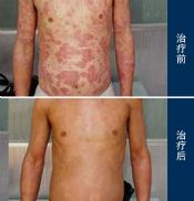维生素A也可以治疗鱼鳞病