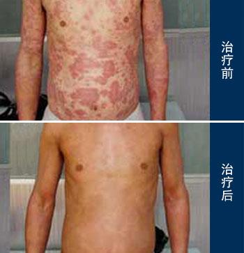 皮肤过敏的护理方法